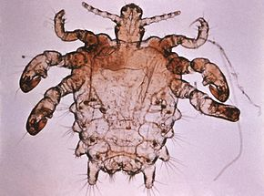 Morpion Phtirus, pou de pubis